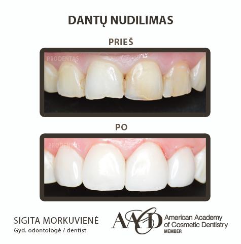 Dantų nudilimas