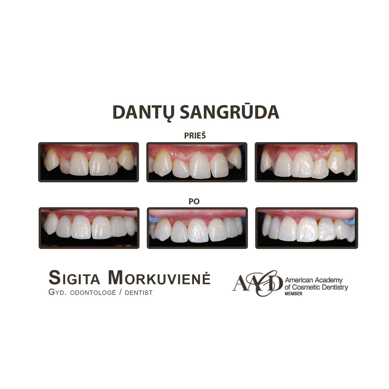 Dantų sangrūda