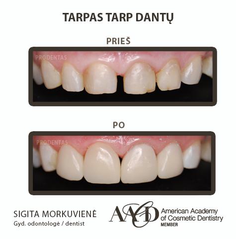 Расстояние между зубами