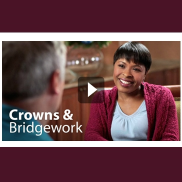 About crowns and bridges