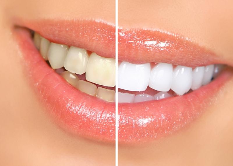 Dantų balinimas beyond