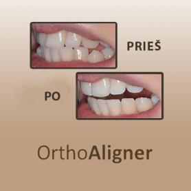 OrthoAligner