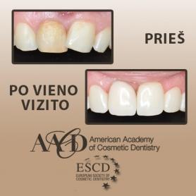 Zahnform wird korrigiert