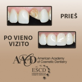 Traumatisierte Zähne